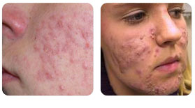 Acne Vulgaris Treatment in Singapore | Dr Lynn Chiam | Skin and ...